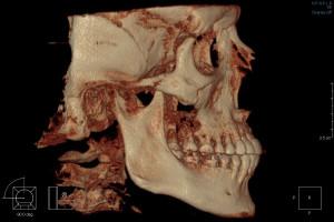 3D КТ зубов