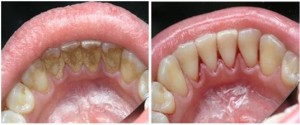 До і після ультразвукового чищення зубів
