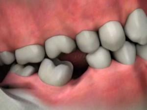 деформация зубного ряда вследствие утраты зубов