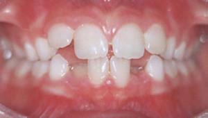 ортодонтические проблемы у ребенка