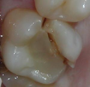скол стенки зуба