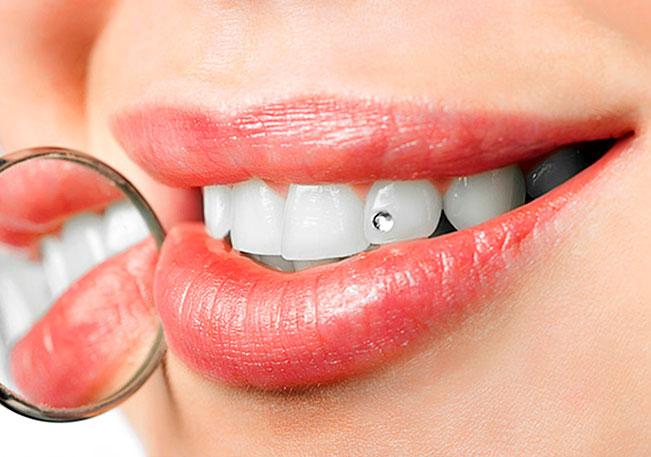 inkrustaciya-zubov-kamnyami-i-skajsami