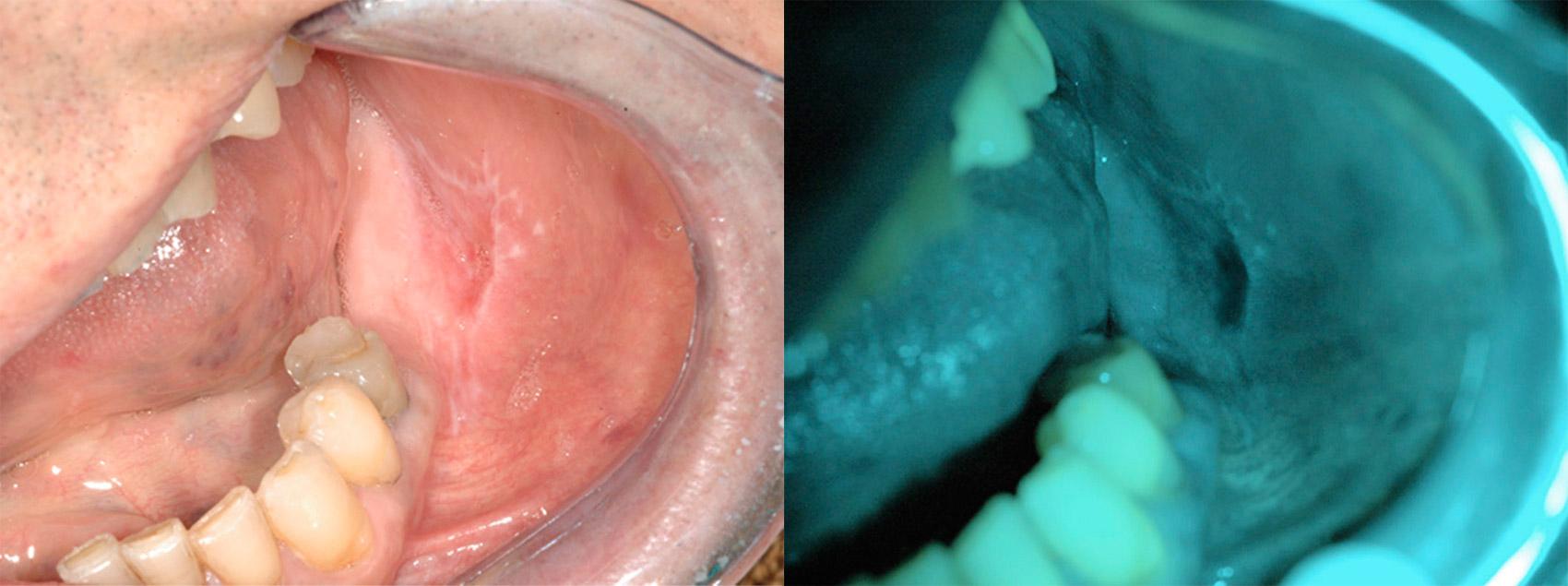 скрининг слизистой полости рта