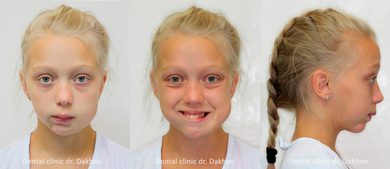 постоперационная деформация нижней челюсти, стоматологическая клиника доктора Дахно