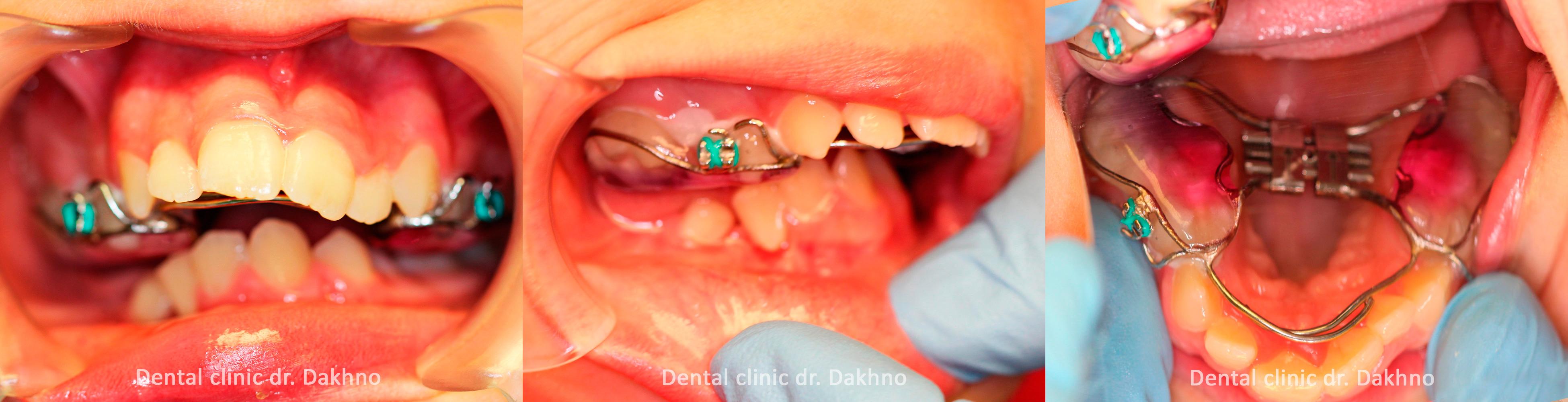 индивидуально изготовленный ортодонтический аппарат, стоматологическая клиника доктора Дахно
