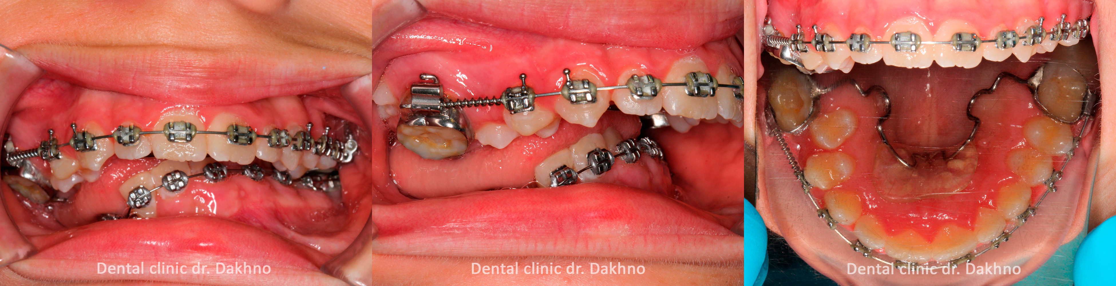 установка брекет-системы, стоматологическая клиника доктора Дахно