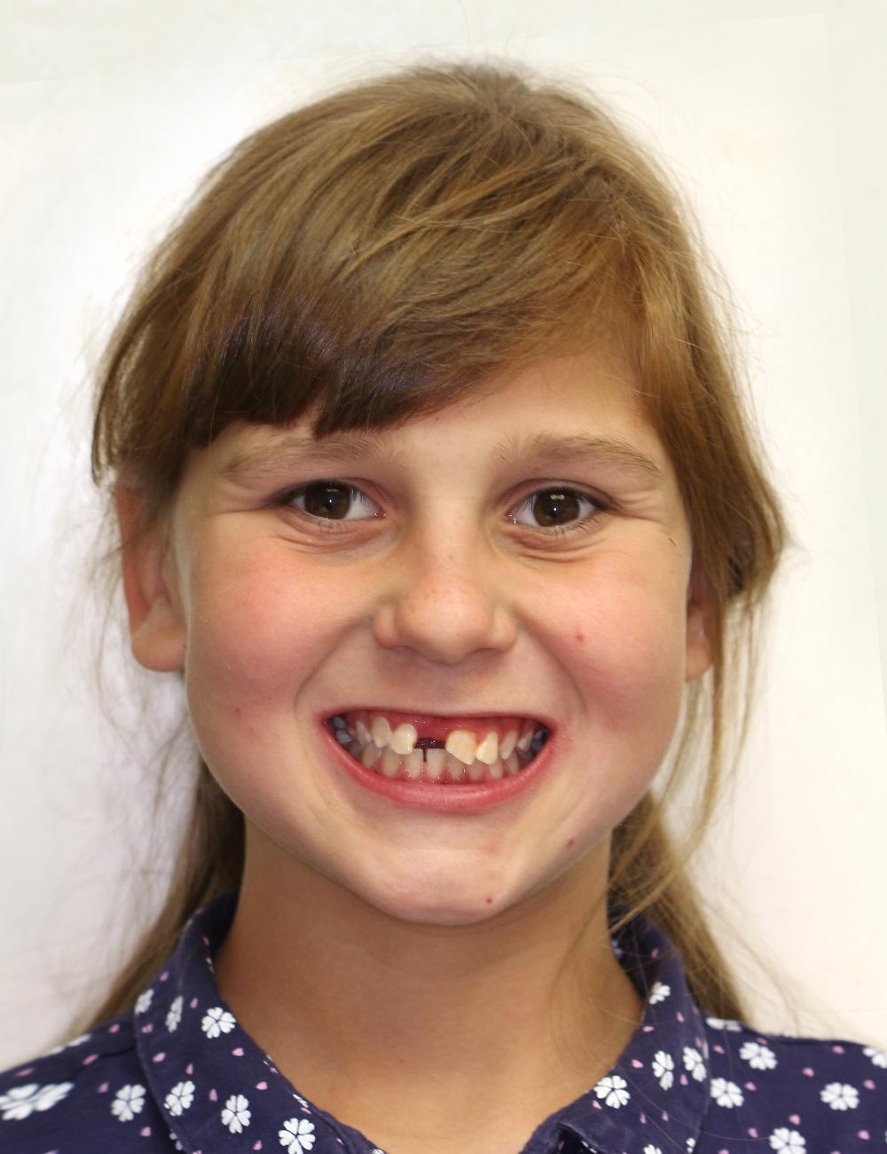 до ортодонтического лечения, стоматологическая клиника доктора Дахно