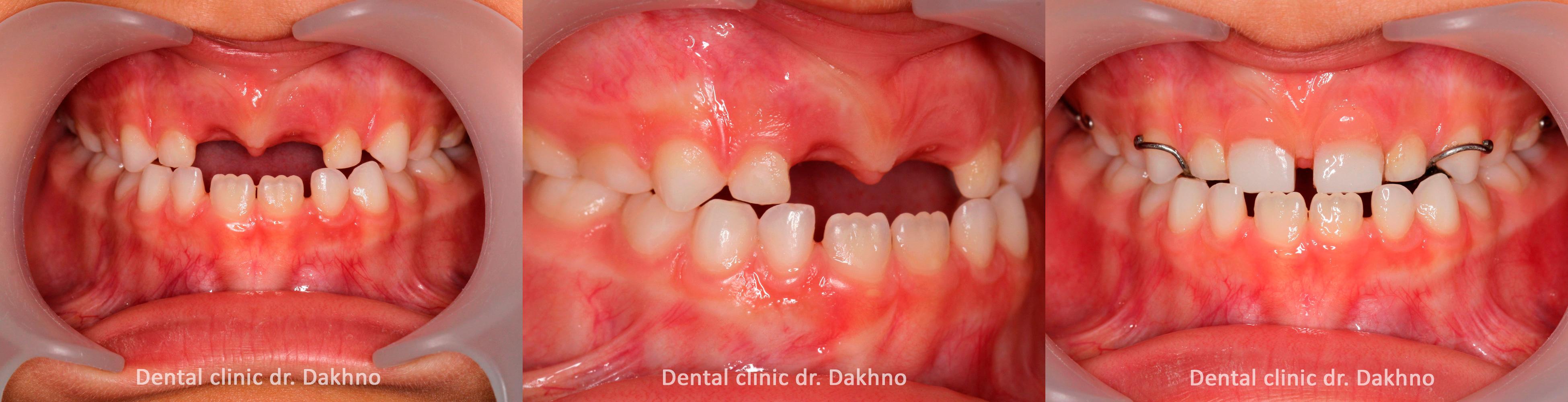 Промежуточный результат, стоматологическая клиника доктора Дахно