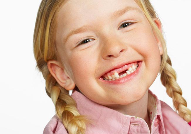 kogda-vypadayut-molochnye-zuby