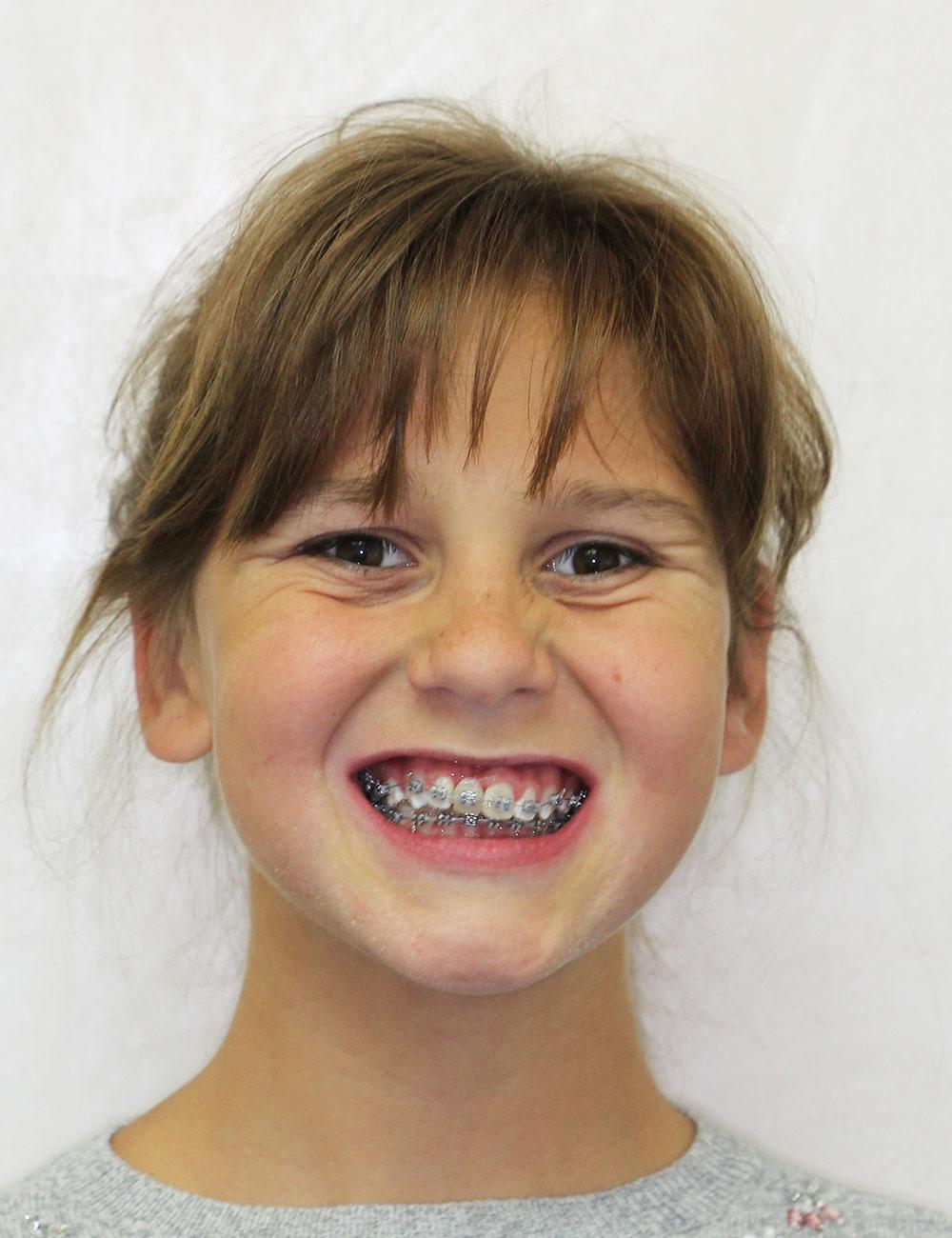 На втором этапе ортодонтического лечения, стоматологическая клиника доктора Дахно