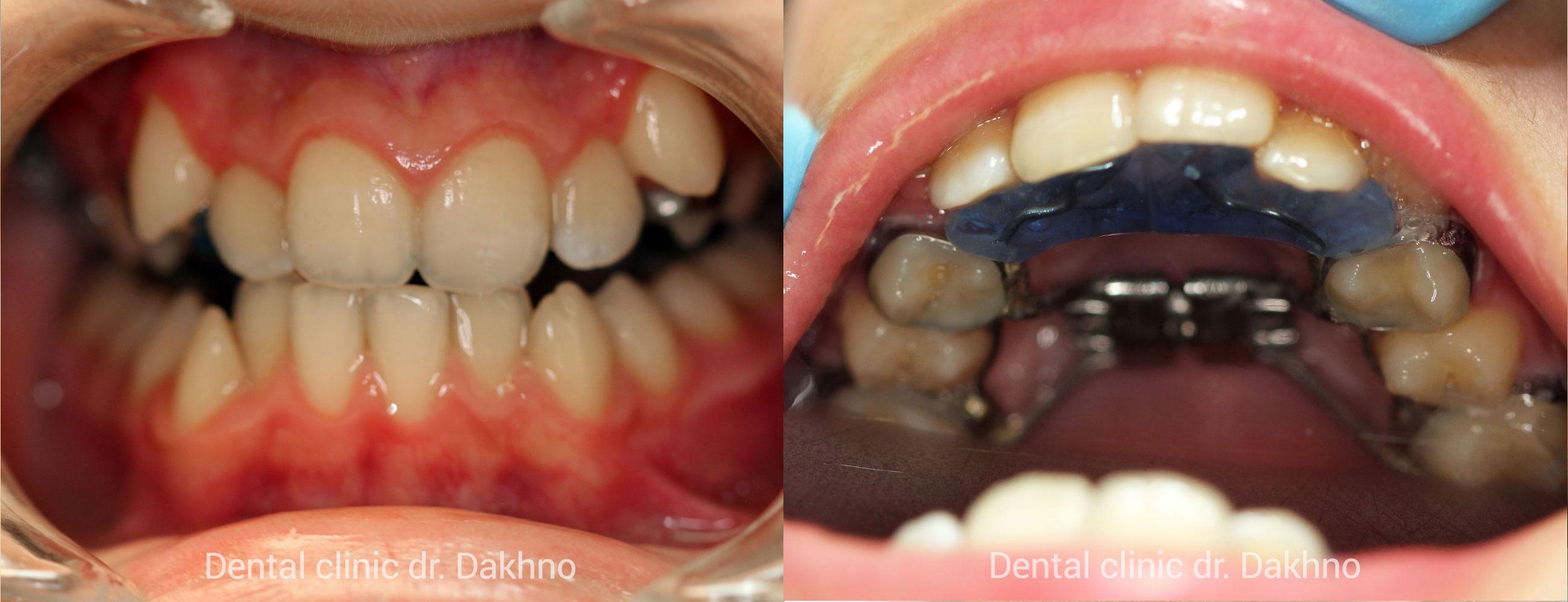 Ортодонтический аппарат для расширения верхней челюсти