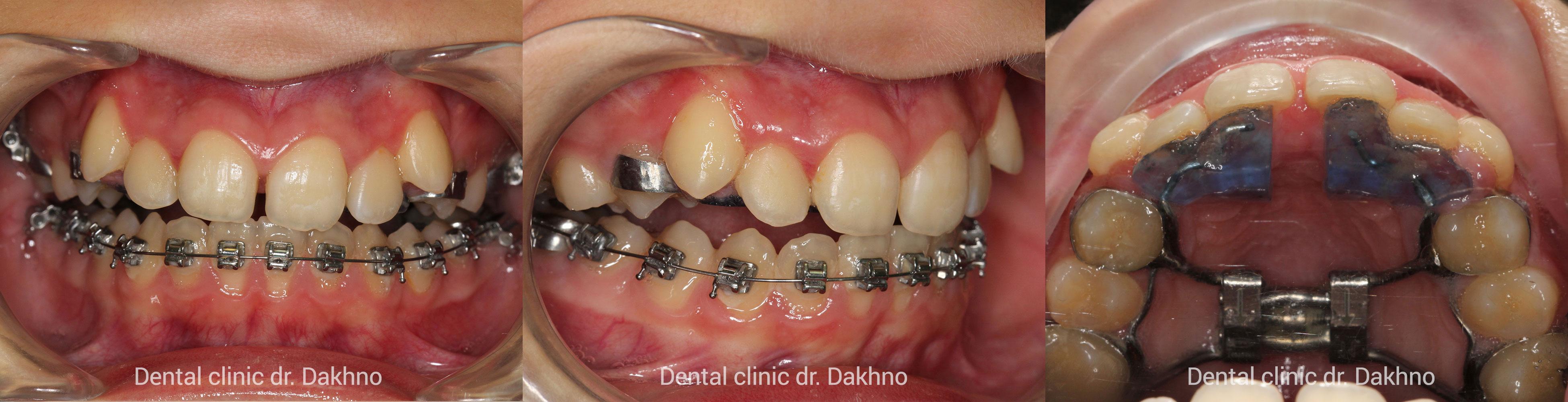 Второй этап расширения верхней челюсти