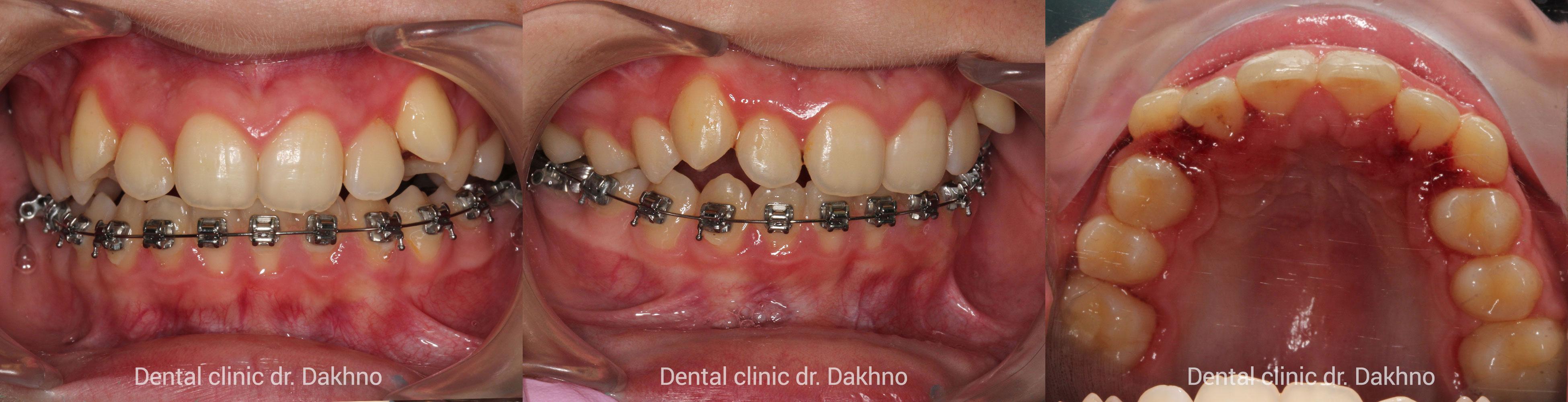 Гингивитомия на верхней челюсти, Гермектомия 38, 48 зубов