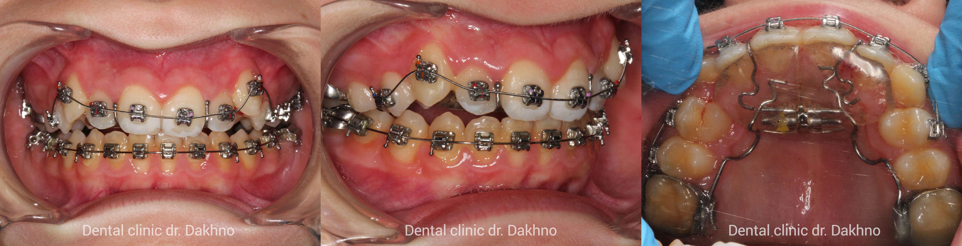 стабилизирующий аппарат и самолигирующая брекет-система верхней челюсти