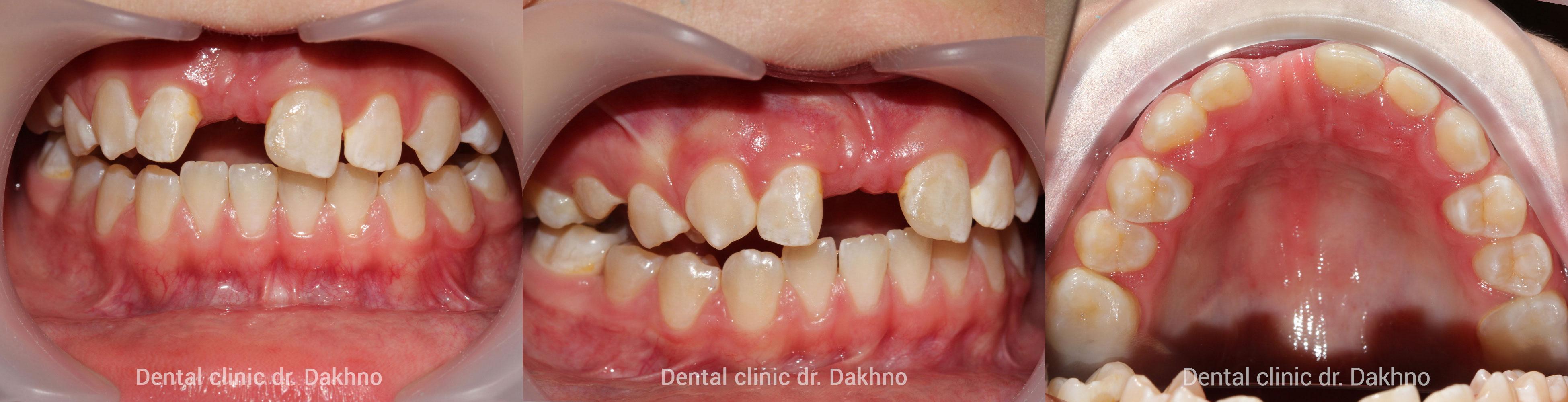 Подготовка ко второму этапу ортодонтического лечения