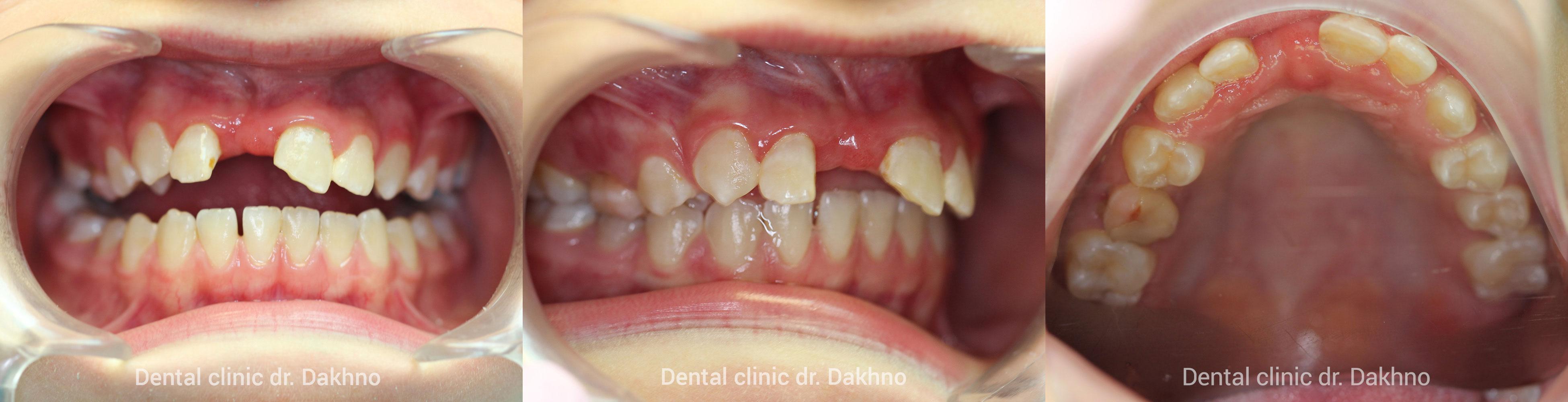 ретрогения, дистальный прикус, протрузия фронтальной группы зубов верхней челюсти